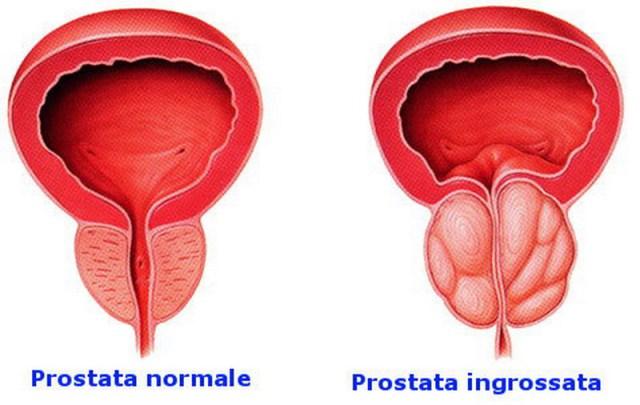 la prostata ingrossata può causare affaticamento