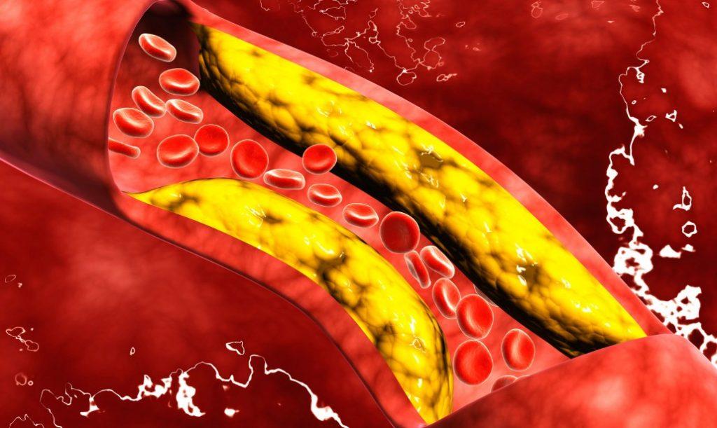 COLESTEROLO E SALUTE HDL LDL CENTRO RICERCA PIANTE OFFICINALI