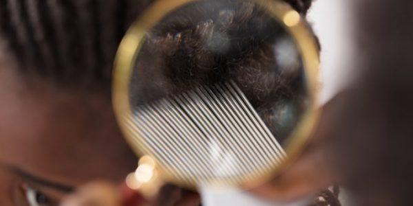 come-eliminare-pidocchi-capelli-afro-600x300-1